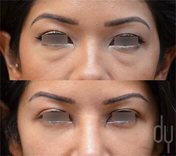Before and After Photo of Lower Blepharoplasty Procedure