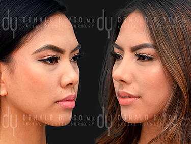 Before and After Photo of Asian Rhinoplasty Procedure