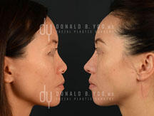 Primary Asian rhinoplasty (before and after)