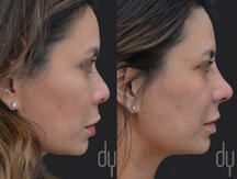 Before and after surgical Asian rhinoplasty