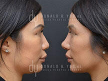 Revision Asian Rhinoplasty (before and after)