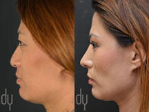 Asian rhinoplasty procedure
