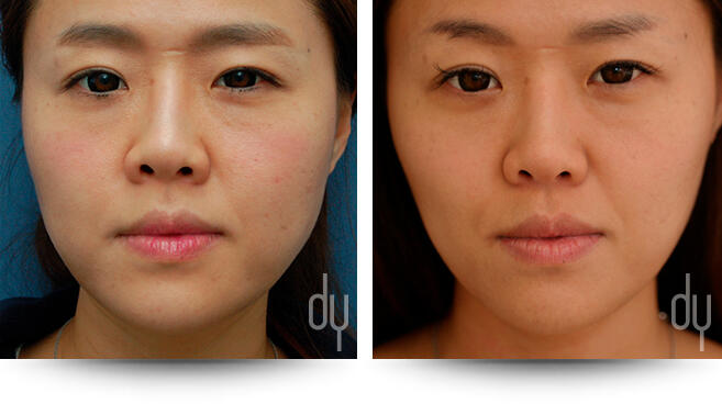 Before and After Photo of Masseter Reduction / V-line Procedure Results