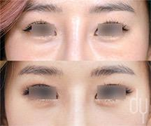 Lower Eyelid surgical procedure (before and after)