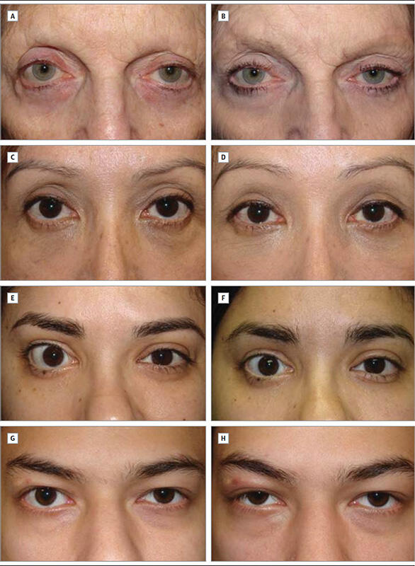 Lower Eyelid Recession Procedure Before and Afters