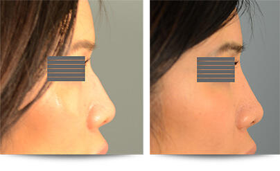 2nd Before and After Photo of Non Surgical Rhinoplasty Results