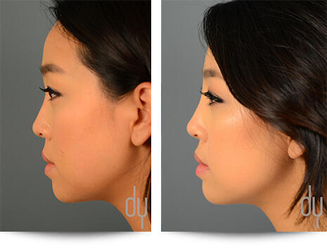 1st Before and After Photo of Non Surgical Rhinoplasty Results