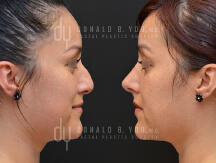 Surgical Rhinoplasty (before and after)