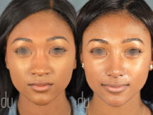 Surgical Rhinoplasty procedure