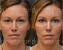 Upper Blepharoplasty surgical procedure (before and after)